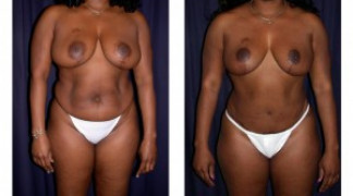 Lipo-Abdominoplasty (Cosmetic) 6 - Front View
