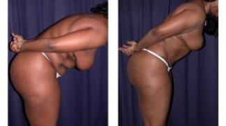 Lipo-Abdominoplasty (Cosmetic) 6 - Side View - Bending