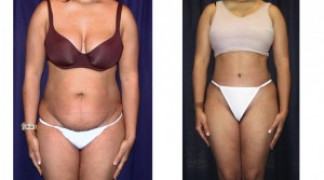 Lipo-Abdominoplasty (Cosmetic) 7 - Front View
