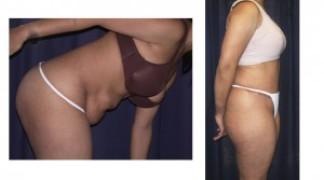 Lipo-Abdominoplasty (Cosmetic) 7 - Side View