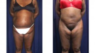 Lipo-Abdominoplasty (Girth) 7 - Front View