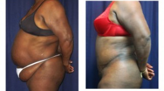 Lipo-Abdominoplasty (Girth) 7 - Side View - Bending
