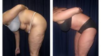 Lipo-Abdominoplasty (Cosmetic) 8 - Side View - Bending