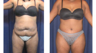 Lipo-Abdominoplasty (Cosmetic) 10 - Front View