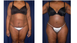 Lipo-Abdominoplasty (Cosmetic) 11 - Front View