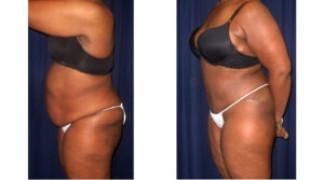 Lipo-Abdominoplasty (Cosmetic) 11 - Side View