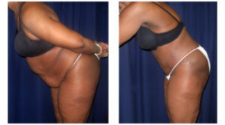 Lipo-Abdominoplasty (Cosmetic) 11 - Side View - Bending