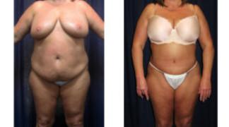 Lipo-Abdominoplasty (Girth) 9 - Front View
