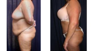 Lipo-Abdominoplasty (Girth) 9 - Side View