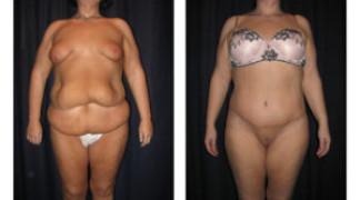 Lipo-Abdominoplasty (Massive Weight Loss) 2 - Front View