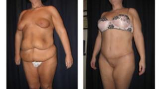 Lipo-Abdominoplasty (Massive Weight Loss) 2 - Side View