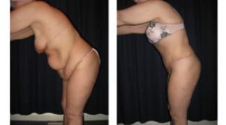 Lipo-Abdominoplasty (Massive Weight Loss) 2 - Side View - Bending