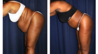 Lipo-Abdominoplasty (Girth) 10 - Side View - Bending