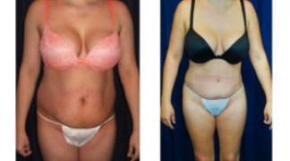 Lipo-Abdominoplasty (Cosmetic) 12 - Front View