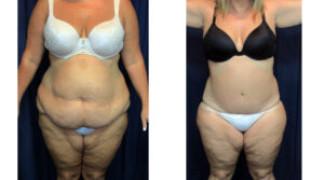 Lipo-Abdominoplasty (Massive Weight Loss) 3 - Front View
