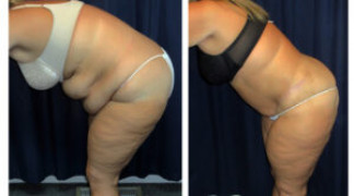 Lipo-Abdominoplasty (Massive Weight Loss) 3 - Side View