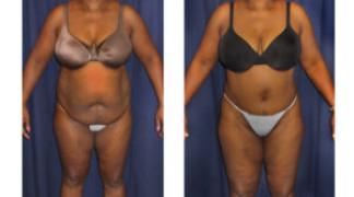 Lipo-Abdominoplasty (Girth) 12 - Front View