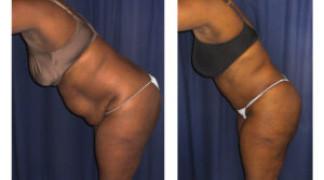Lipo-Abdominoplasty (Girth) 12 - Side View