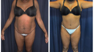 Lipo-Abdominoplasty (Girth) 13 - Front View