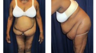 Lipo-Abdominoplasty (Staged) 1 - Pre-Operation