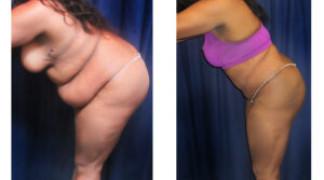 Lipo-Abdominoplasty (Cosmetic) 14 - Side View