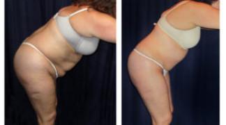 Lipo-Abdominoplasty (Cosmetic) 15 - Side View