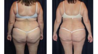 Lipo-Abdominoplasty (Cosmetic) 15 - Back View