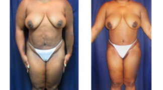 Lipo-Abdominoplasty (Unbotched) 3 - Front View