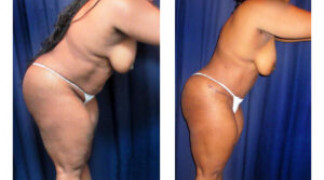 Lipo-Abdominoplasty (Unbotched) 3 - Side View - Bending