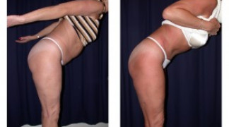 Lipo-Abdominoplasty (Unbotched) 1 - Side View - Bending