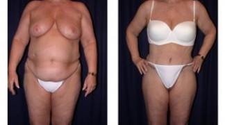Lipo-Abdominoplasty (Girth) 2 - Front View