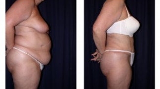 Lipo-Abdominoplasty (Girth) 2 - Side View - Standing