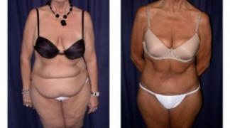 Lipo-Abdominoplasty (Massive Weight Loss) 1 - Front View