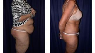 Lipo-Abdominoplasty (Massive Weight Loss) 1 - Side View