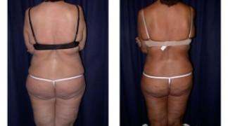 Lipo-Abdominoplasty (Massive Weight Loss) 1 - Back View