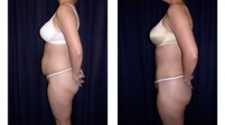 Lipo-Abdominoplasty (Cosmetic) 3 - Side View - Standing