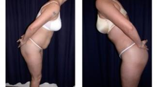 Lipo-Abdominoplasty (Cosmetic) 3 - Side View - Bending