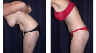 Lipo-Abdominoplasty (Unbotched) 2 - Side View - Bending