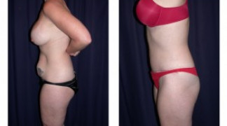 Lipo-Abdominoplasty (Unbotched) 2 - Side View - Standing
