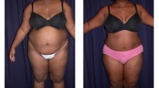 Lipo-Abdominoplasty (Girth) 3 - Front View