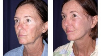 Before and After - MACS Lift / Fat Grafting 1 - Profile