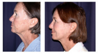 Before and After - MACS Lift / Fat Grafting 1 - Side View