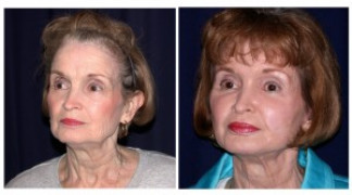 Before and After - MACS Lift / Fat Grafting 3 - Profile
