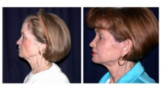 Before and After - MACS Lift / Fat Grafting 3 - Side View