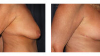 Mastopexy / Breast Lift 1 - Side View