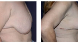 Mastopexy / Breast Lift 2 - Side View