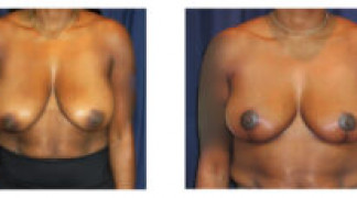Mastopexy / Breast Lift 4 - Front View