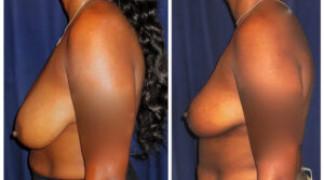 Mastopexy / Breast Lift 4 - Profile
