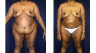 Lipo-Abdominoplasty (Staged) 2 - Front View - Before and After Surgery Two