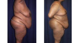 Lipo-Abdominoplasty (Staged) 2 - Side View - Before and After Surgery Two